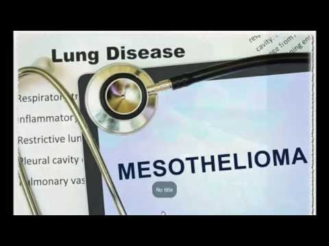 53 FI- Mesothelioma Legal requirements Resources/Mesothelioma-Law-Firm