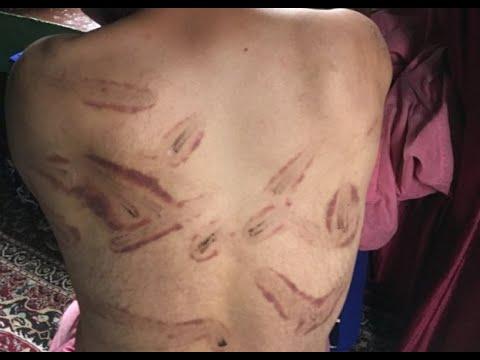 কাশ্মীর সংকট: নির্যাতনের অভিযোগ ভারতীয় সেনাবাহিনীর বিরুদ্ধে