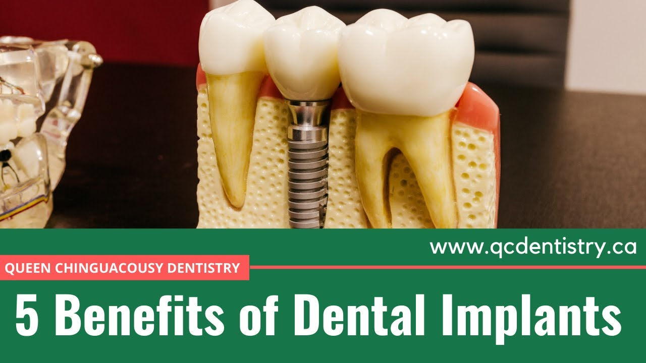 5 Benefits of #Dental Implants: Dentist on Chinguacousy RD (Queen Chinguacousy Dentistry)