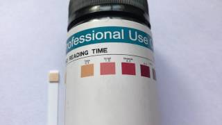 How to read Ketone strips results. What are normal ketone levels ?