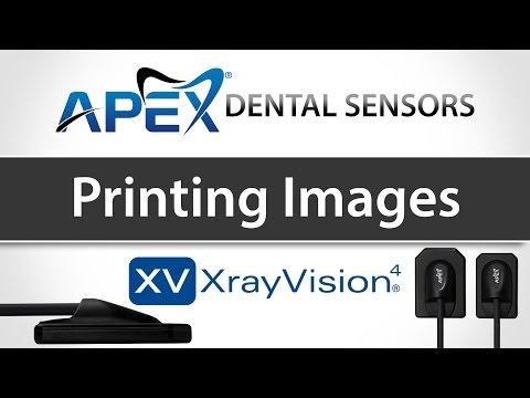 Apteryx XrayVision Printing Images - Apex Dental Sensors - Training