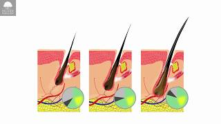 Hair Cycle and Hair Growth Factors