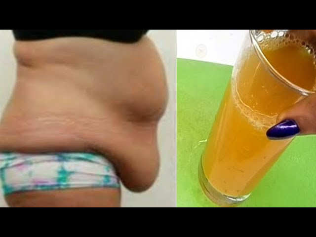 No Jokes Remove Belly Fat Overnight With Just 1 Glass 100 Working Belly Fat Water