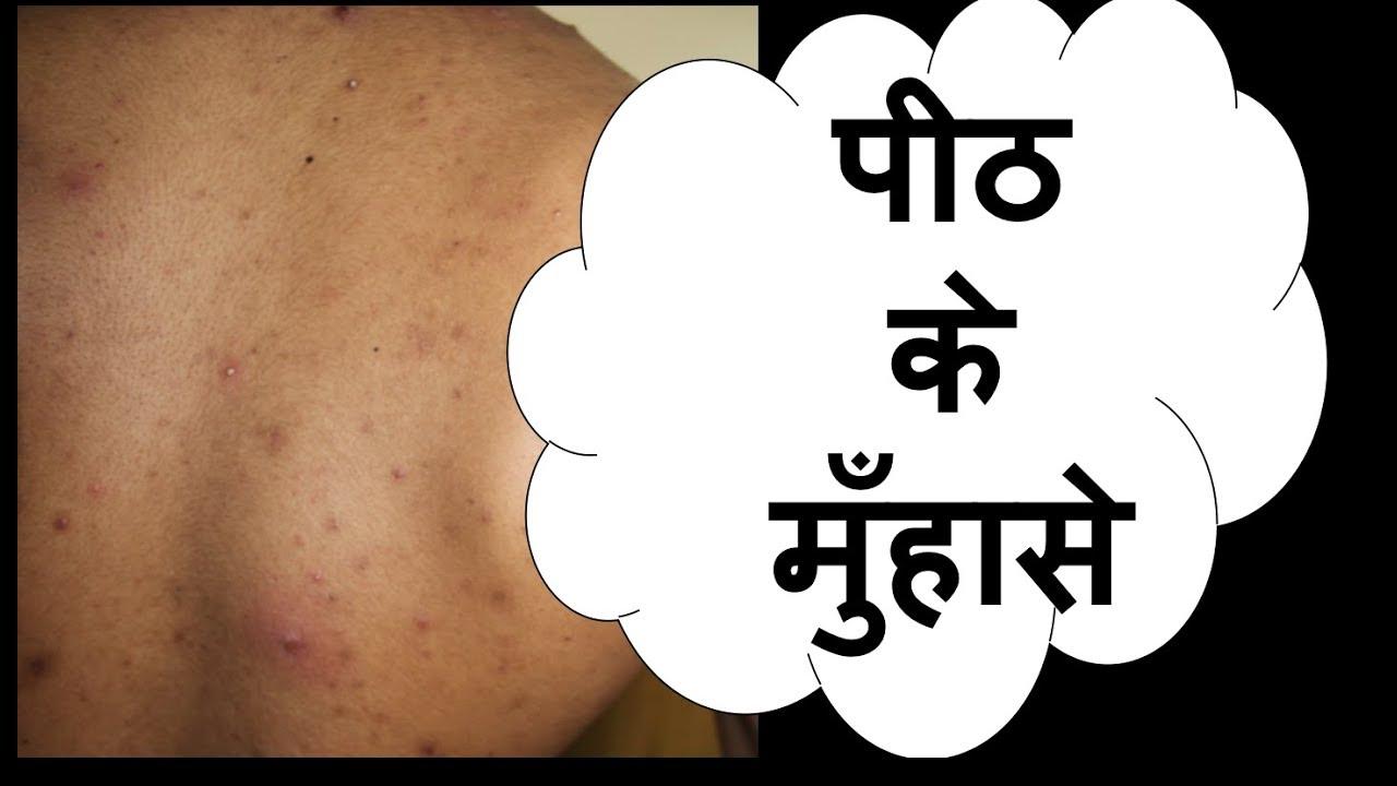 प ठ क म ह स Back Acne Truncal Acne Hindi