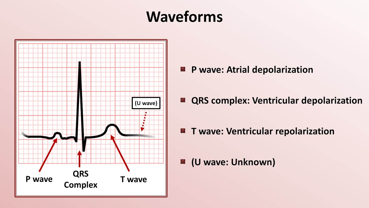 Intro to EKG Interpretation - Waveforms, Segments, and Intervals ...
