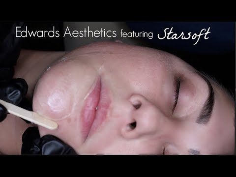 Edwards Aesthetics  Face Wax-Leg Wax  featuring Starsoft