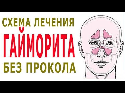 Как лечить гайморит народными средствами быстро. Лечение