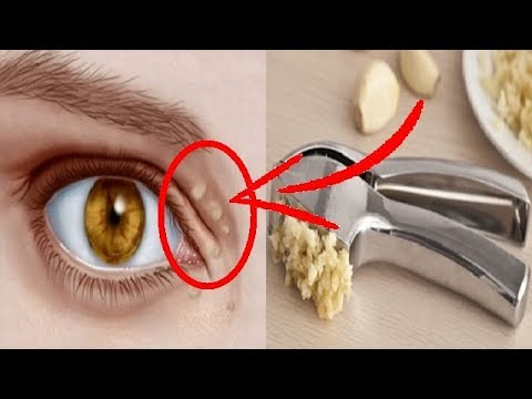 how-to-remove-the-cholesterol-deposits-around-your-eyes-|-natural-remedies