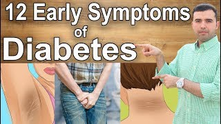 Do not Ignore These 12 First Symptoms of Diabetes!