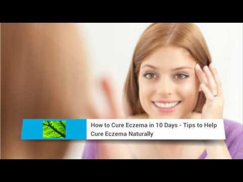 Get Rid of Eczema - how to get rid of eczema fast - get rid
