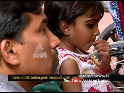 Attempt To Avail The Medicine For Spinal Muscular Atrophy