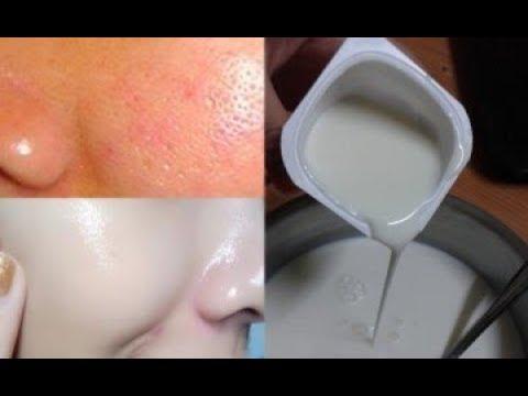Thu nhỏ lỗ chân lông 100% và da trắng bật nhờ 1 hũ sữa chua 6k