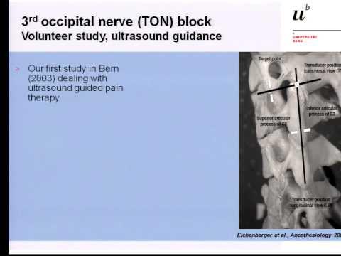 Pain Medicine - Greater Occipital Nerve, Third Occipital Nerve and Cervical Plexus