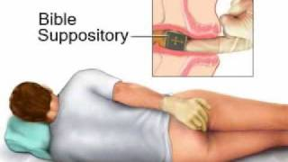 Bible Suppositories: Turn the Other Cheek