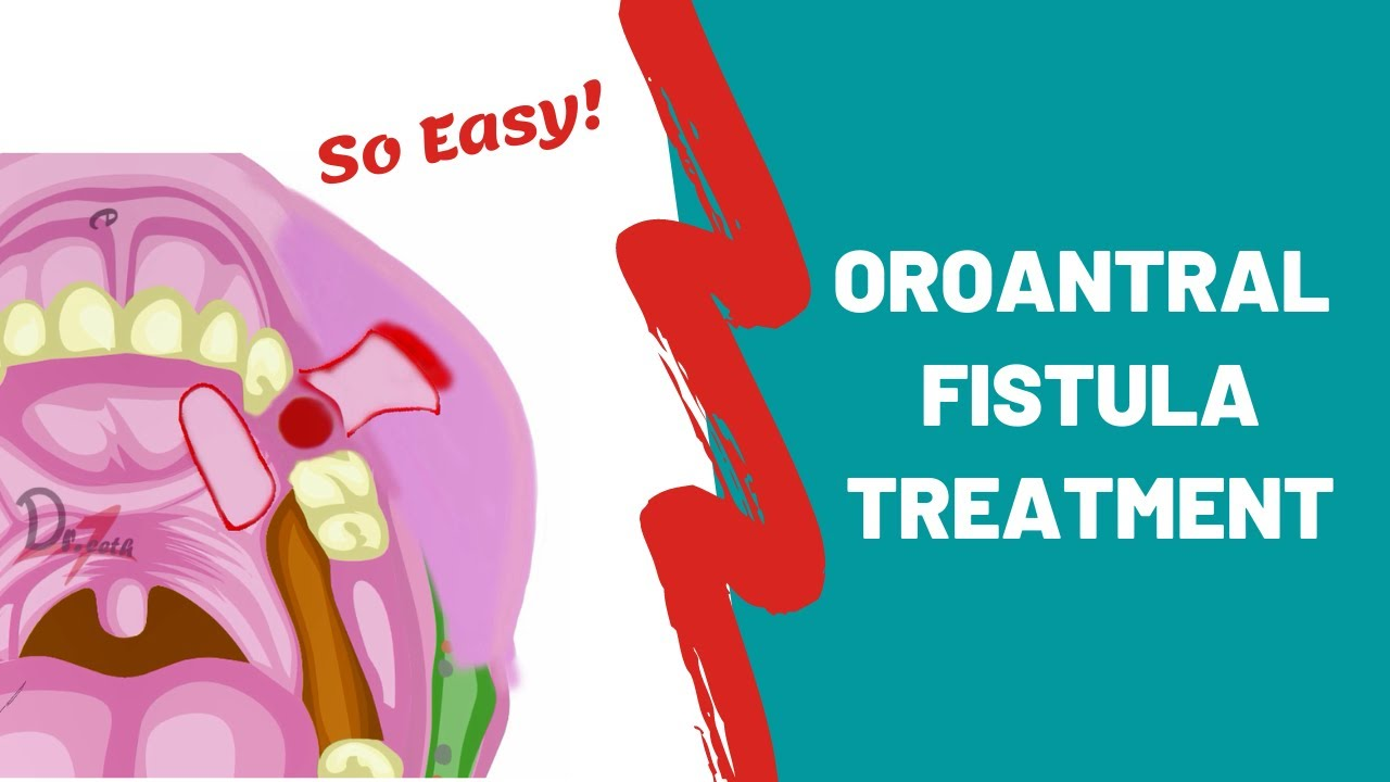 Oroantral Fistula | Treatment Options | ORAL SURGERY