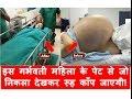 पेट में बच्चे समझ महिला का डॉक्टरों ने किया आपरेशन, तो पेट से निकला | Pregnant Woman Suuffered Mp3