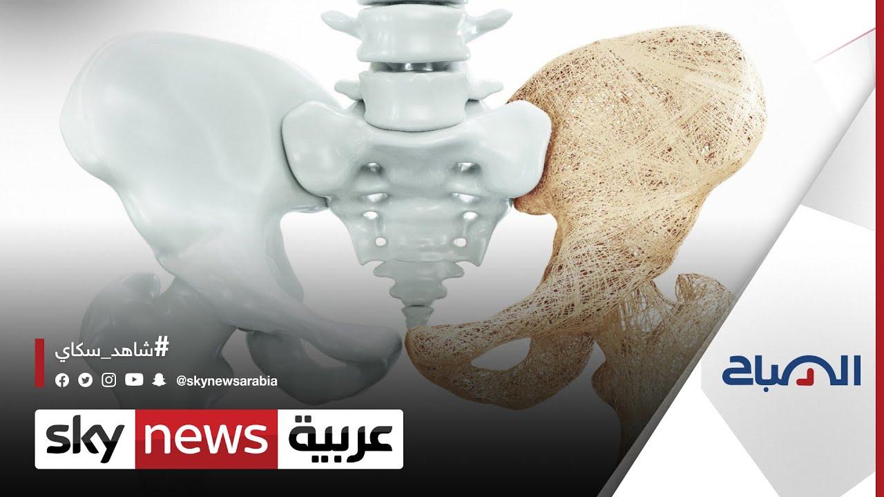 في اليوم العالمي لهشاشة العظام، ما أهمية تعزيز صحة العظام وحمايتها من الكسور؟ | #الصباح  - 12:55-2021 / 10 / 20