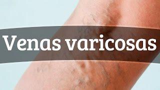 Cortadas venas varicosas