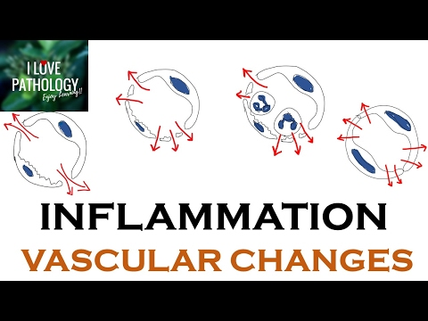 INFLAMMATION Part 1: General concepts, types , Vascular changes in Acute inflammation