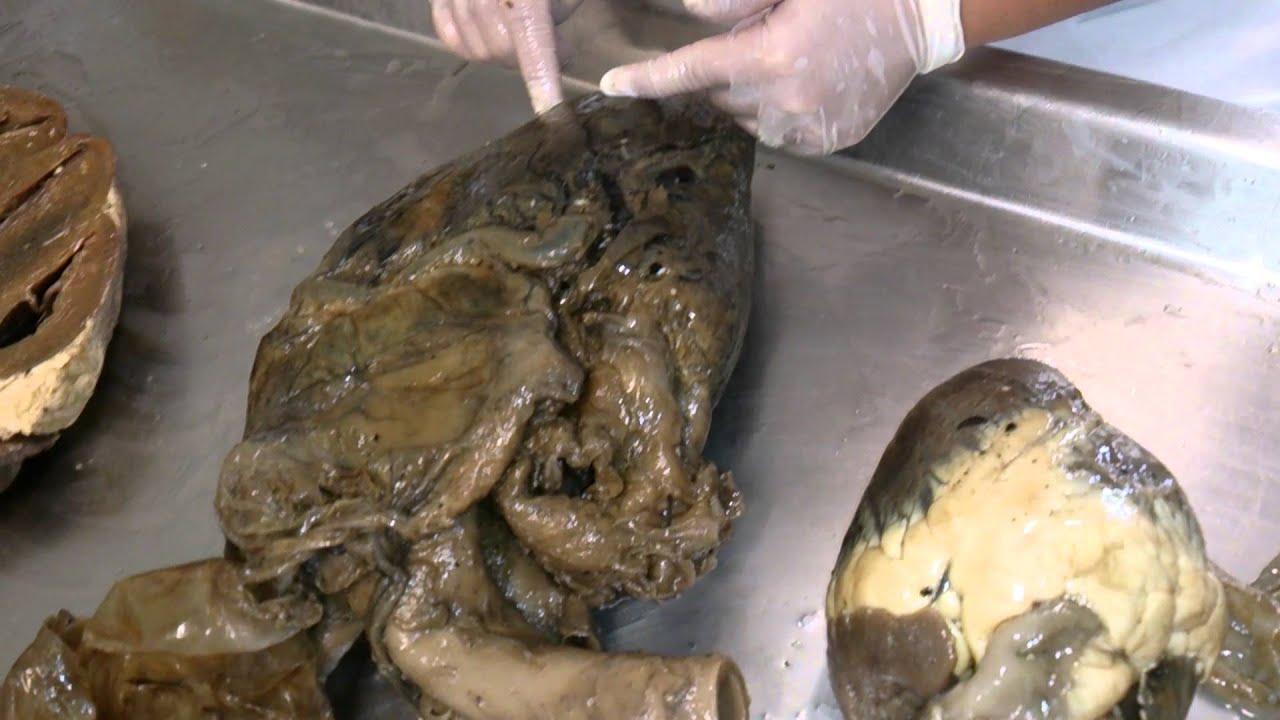 Anatomia veterinária - Sistema Circulatório Pt I - YouTube