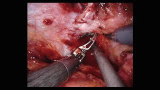 Robotic Prostatectomy- modification to maximize apical sparing (Resident education video)