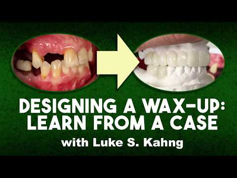 Designing A Wax-Up: Learn From A Case | Dental Lab Learning