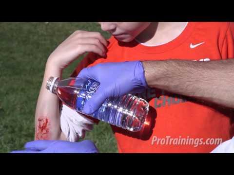 Capillary Bleeding (Child)