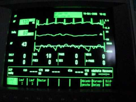 inhaling helium / oxygen desaturation SpO2 and EKG monitoring