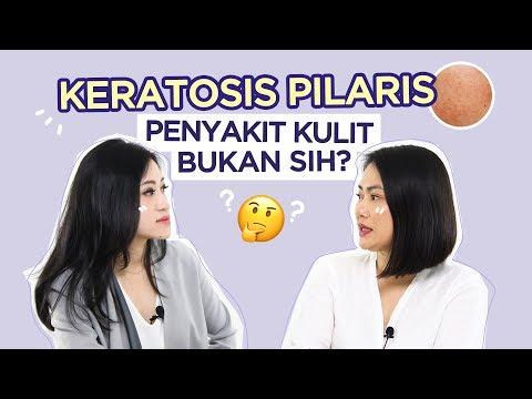 Keratosis Pilaris Itu Penyakit Kulit Apa Bukan? | Skincare 101