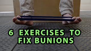 6 Exercises to Fix Bunions
