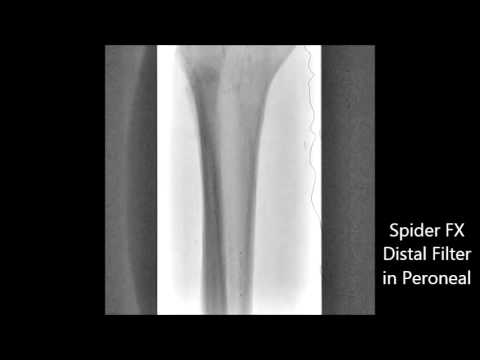 Peroneal Artery and Posterior Tibial PTA & Atherectomy - YouTube