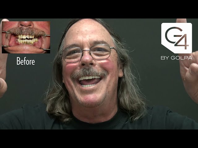 Gary Nichols | G4 By Golpa | Patient Testimonial