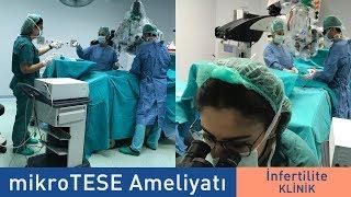 Aşama Aşama MikroTESE Ameliyatı | Dr. Muhsin Balaban