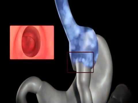 About Revision Surgery - Dr. Jeremy Korman M.D.