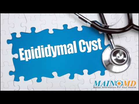 Epididymal Cyst ¦ Treatment and Symptoms