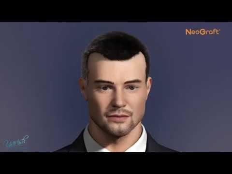 NeoGraft at Yarish