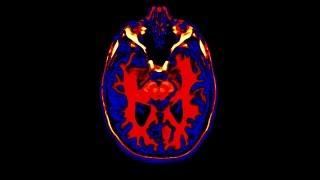 Health in 3D - Brain Health