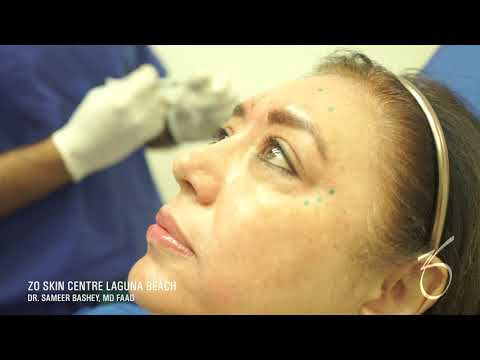 Xeomin for Wrinkles Around the Eyes at ZO Skin Centre
