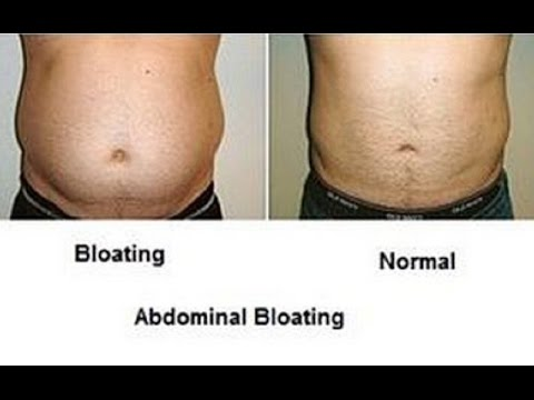 natural home remedies for a bloating stomach - youtube, Skeleton