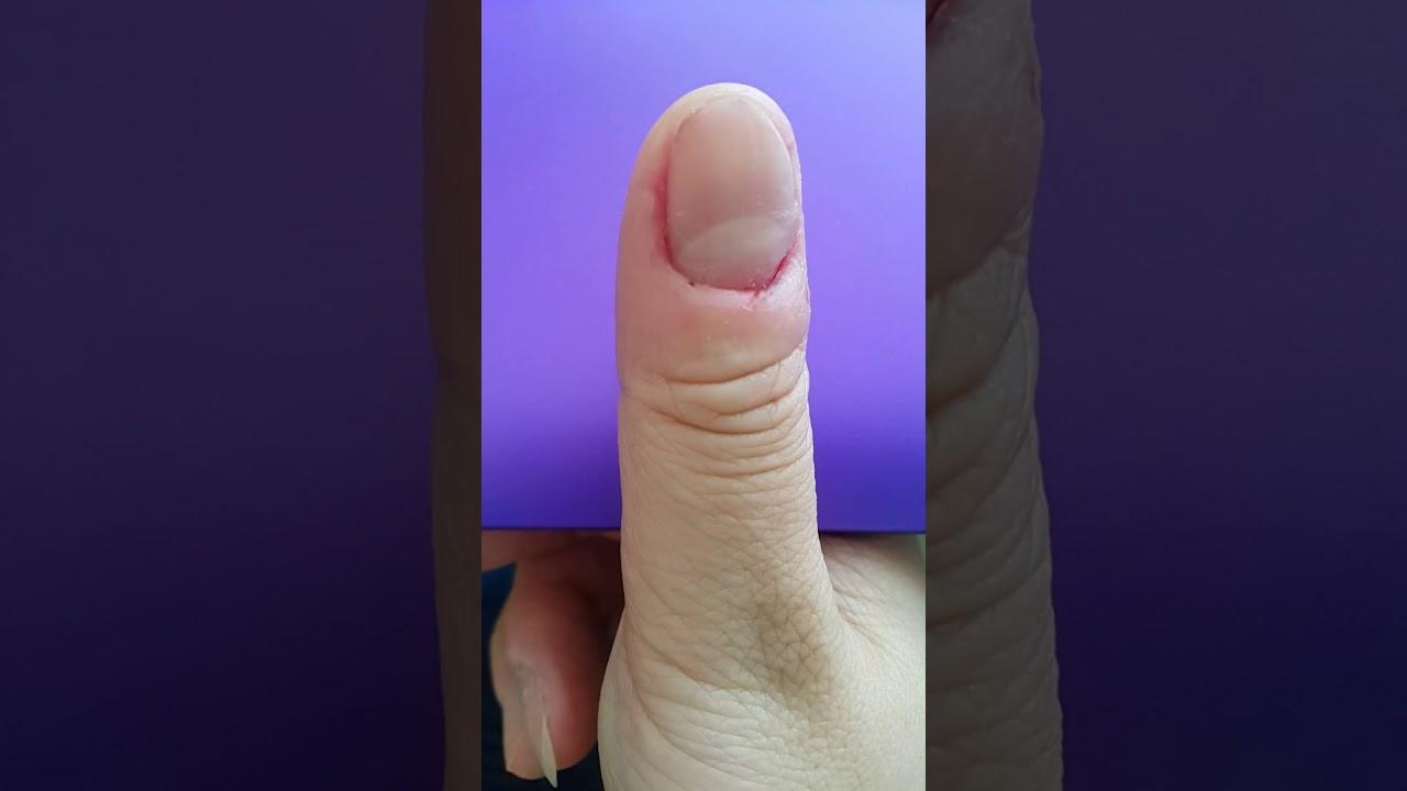 Cuticle Picking - YouTube
