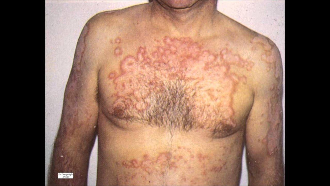 a lupus tünetei lefogynak fogyjon le és ne gondolja felül