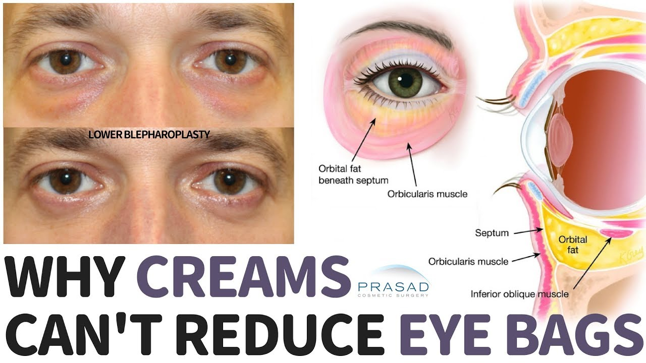 Why Creams Can't Treat Constantly Puffy Under Eye Bags - YouTube