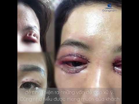 Thẩm mỹ mắt – Chia sẻ cùng chuyên gia tại GANGNAM
