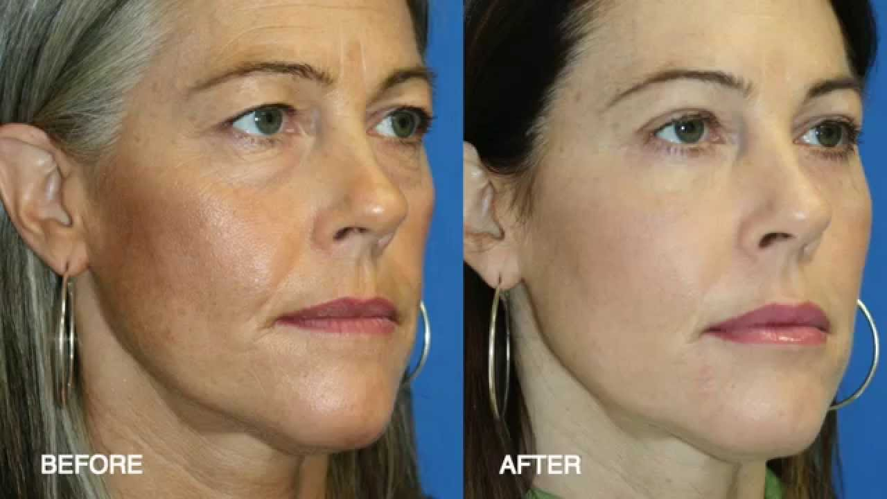Surgical facial rejuvenation