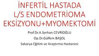 Laparoskopik Endometrioma Eksizyonu ve Myomektomi - Prof Dr Serhan Cevrioğlu