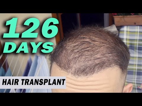 FUE Hair Transplant Day 126 (post op) Istanbul, Turkey GROWTH STAGE