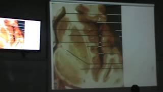 Dr. Sherif Fahmy Neuro II 4 (Internal Capsule)