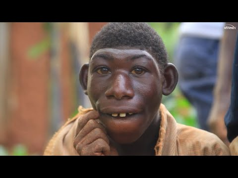 Bullies Call Him Monkey | BORN DIFFERENT