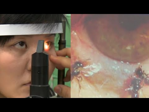 Kristina - Four Bees Found Living in Woman's Eye