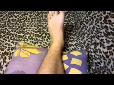 Лечение после перелома лодыжки после снятия гипса: отёки и